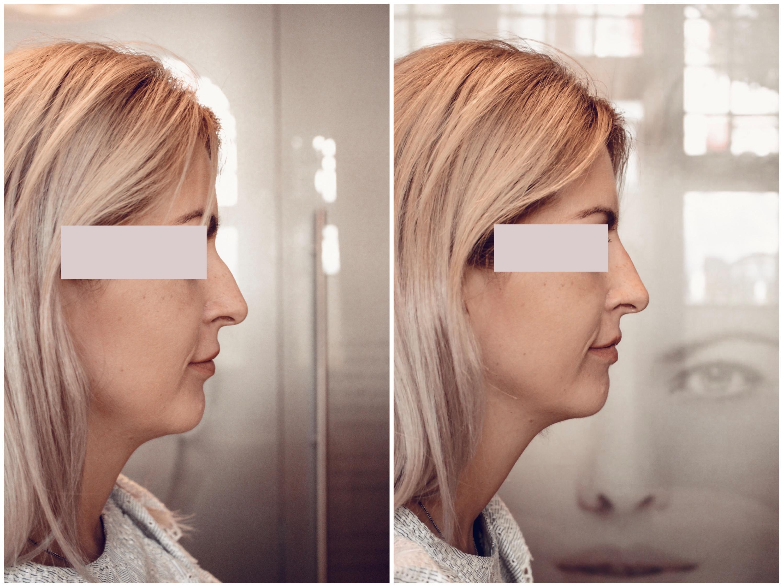NasenkorrekturohneOPVorherNachher1